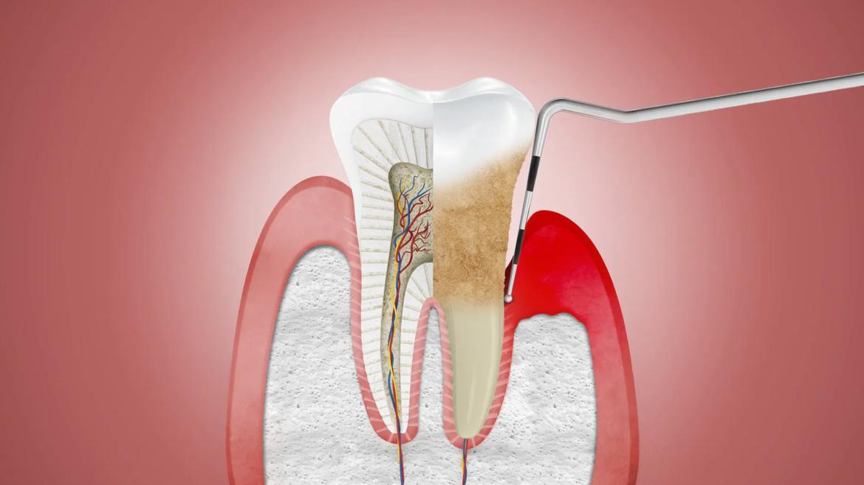 Periodontal (Gum) Care